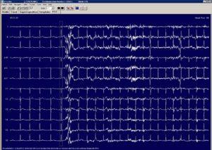 60 Hz Interference on EKG Holter Unit